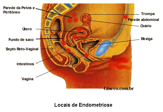 endometriose_local.jpg